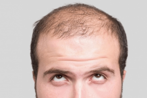10 ways to reduce hair loss in men